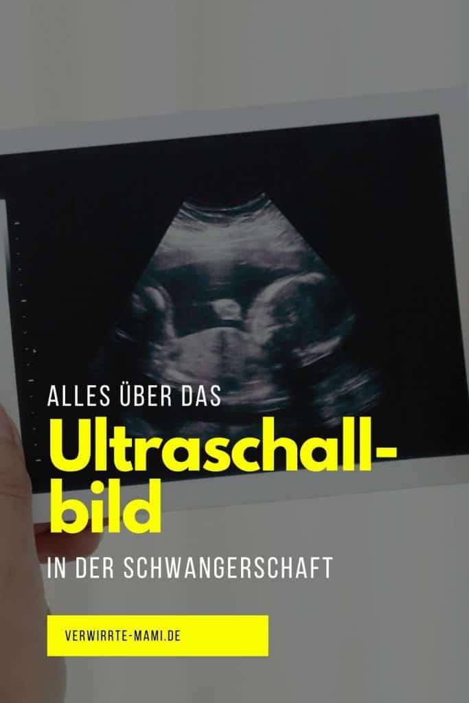 Ultraschallbild
